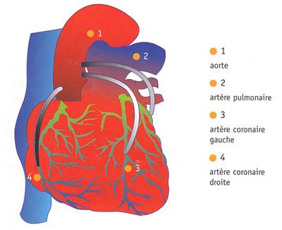 cardiopathie ischémique tritronculaire